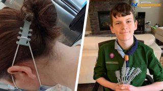Quinn Callander, un jeune canadien a fabriqué un « protège-oreilles » pour soulager la douleur des soignants qui doivent porter un masque toute la journée.